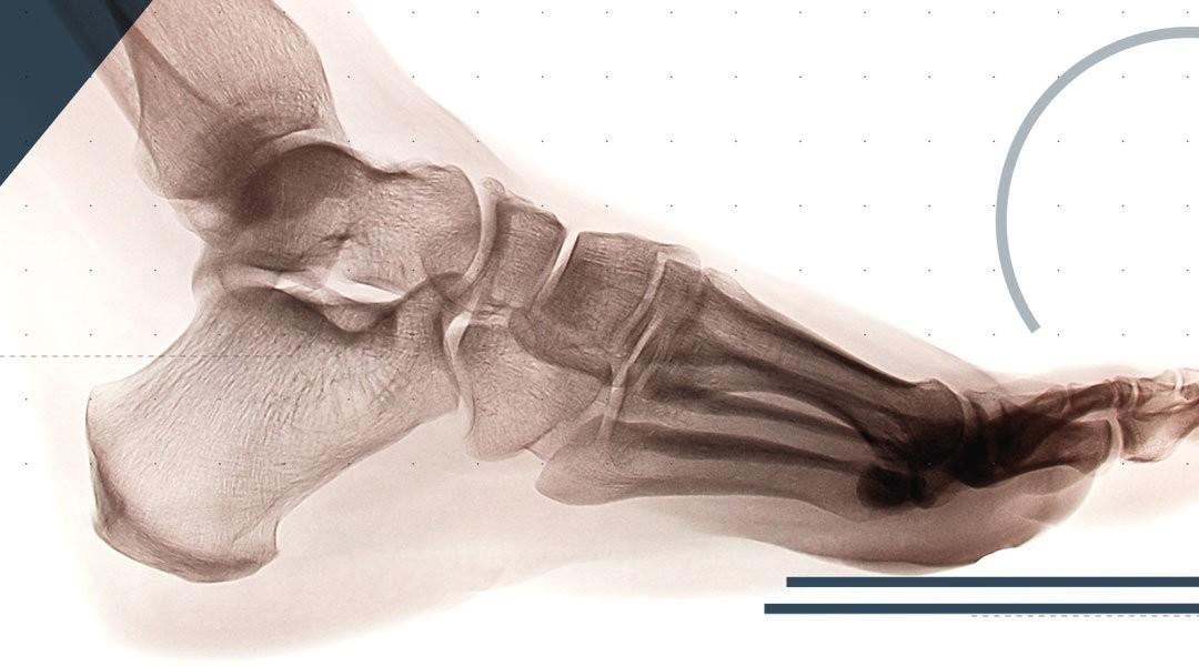 Lisfranc Injuries in Sport