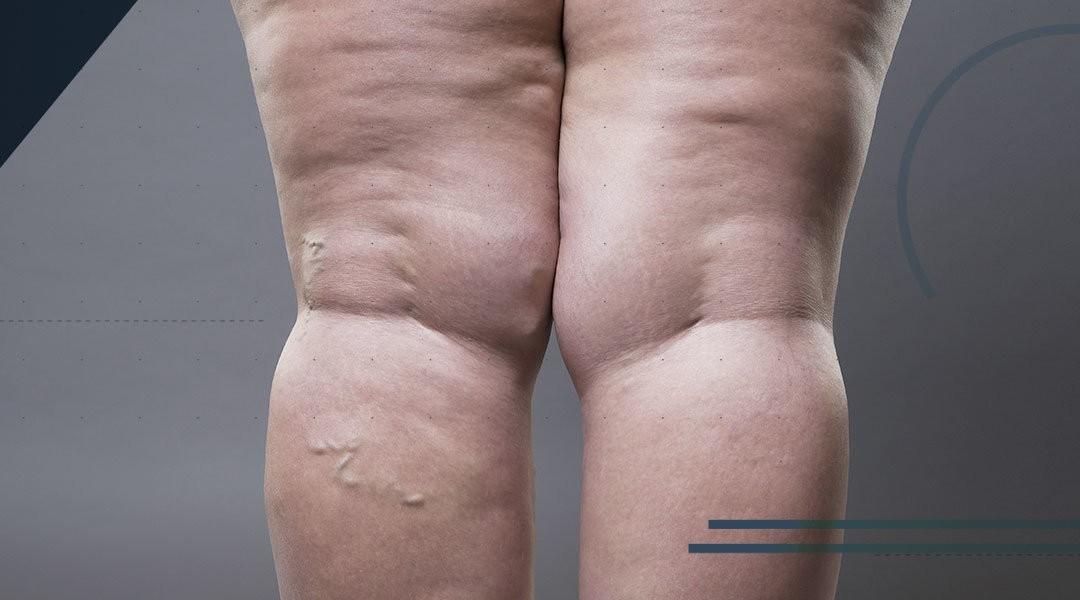 Protesi di caviglia e obesità