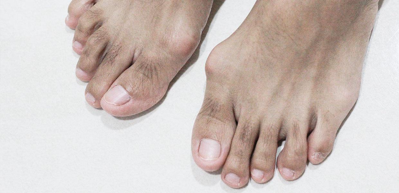 piedi-con-alluce-valgo-maschili-min