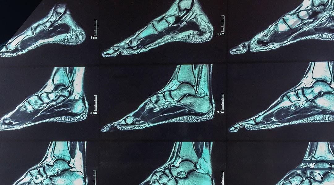 La lesione cartilaginea: lesione osteocondrale