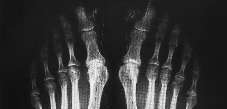 radiografia-dell-alluce-valgo-due-piedi-min