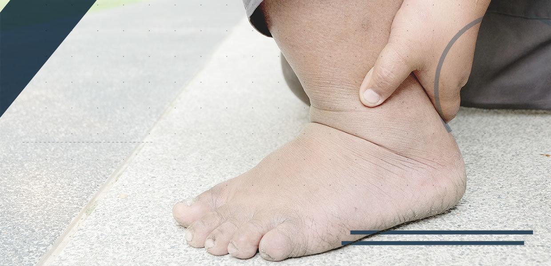 piede-obeso-dolore-caviglia-min