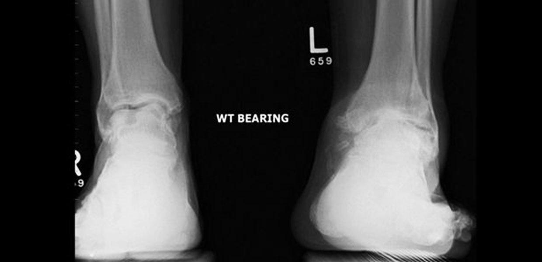 imaging-bearing