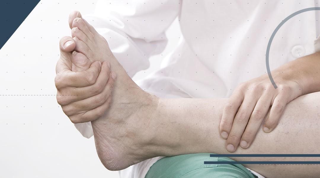 Protesi di caviglia: due algoritmi di riabilitazione