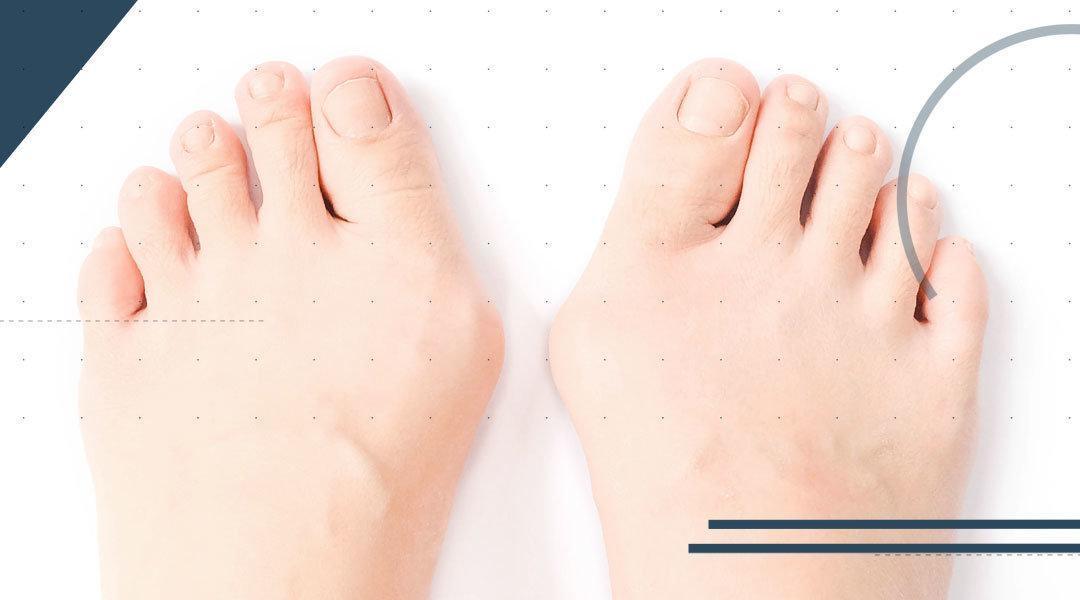 Intervento chirurgico di alluce valgo: dalla fase pre-operatoria al ritorno alle scarpe con il tacco