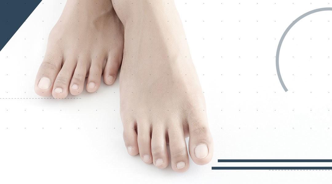 Il piede cavo: le soluzioni terapeutiche sono correlate alle sue cause