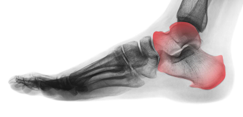 rx in carico artrosi caviglia