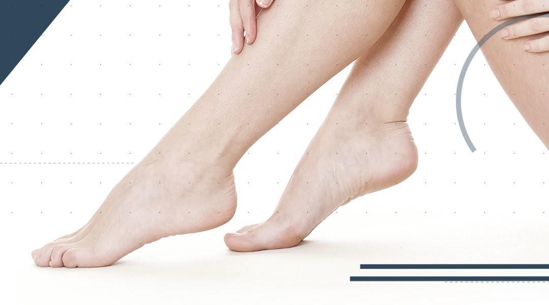 Protesi di caviglia e artrodesi della sottoastragalica in un unico atto chirurgico