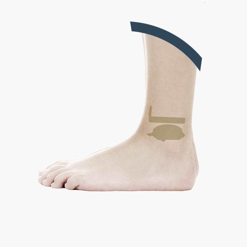 Protesi di Caviglia Mobile Bearing
