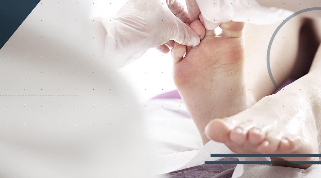 Alluce valgo: le principali tecniche chirurgiche