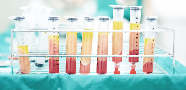 medicina rigenerativa lipogems